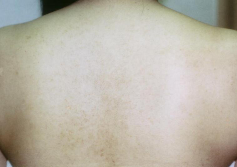 背中のシミ+アトピー性皮フ炎+ニキビ跡