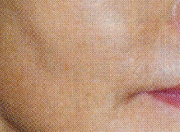 頬のタルミ