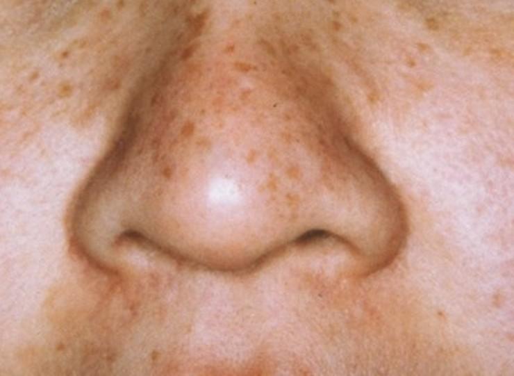 鼻のソバカス