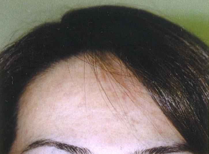 額のニキビ跡