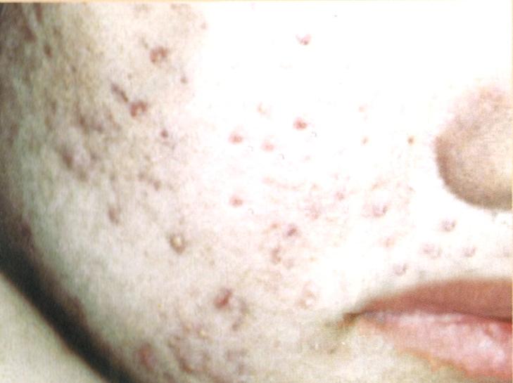 頬のニキビ・ニキビ跡