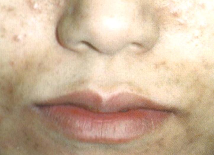 口のニキビ跡