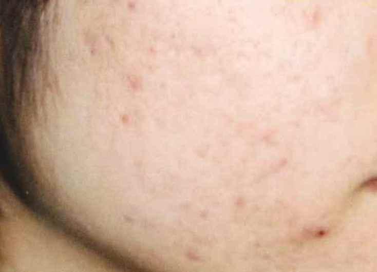 頬のニキビ跡