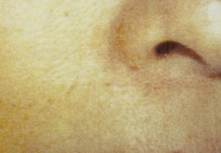 頬のホクロ