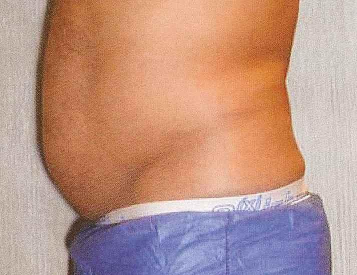 お腹の肥満