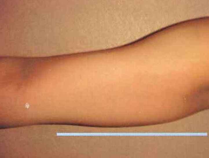 二の腕の脂肪分解