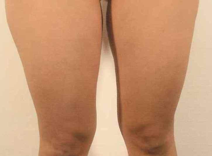 脚の脂肪分解