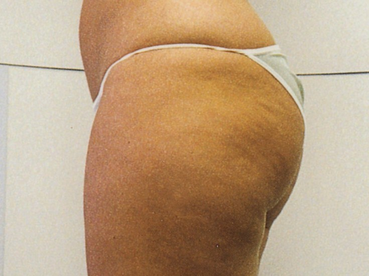 下半身の肥満・セルライト