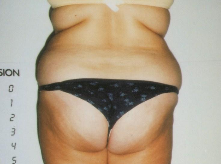 お腹〜お尻の肥満