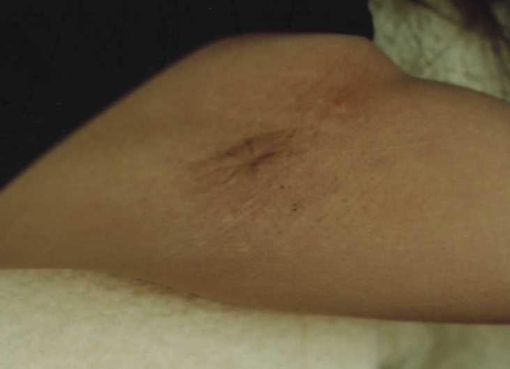 ワキの傷跡