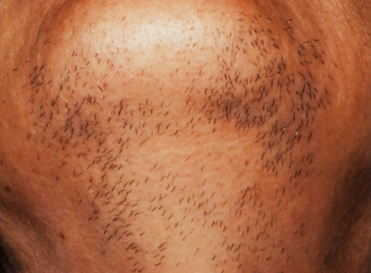 あごの脱毛