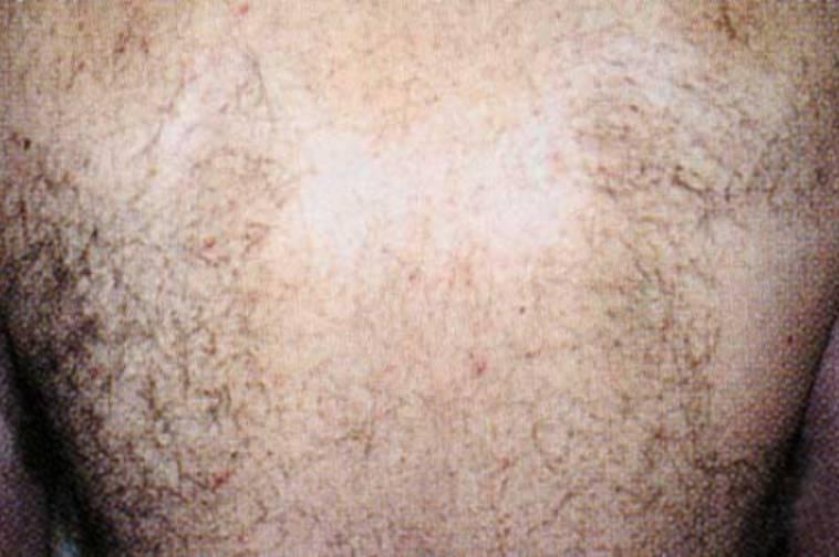背中の脱毛