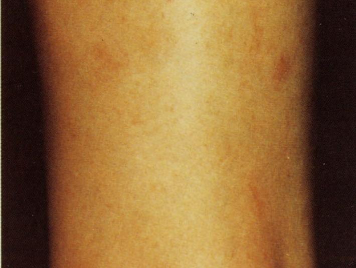 腕の青い血管