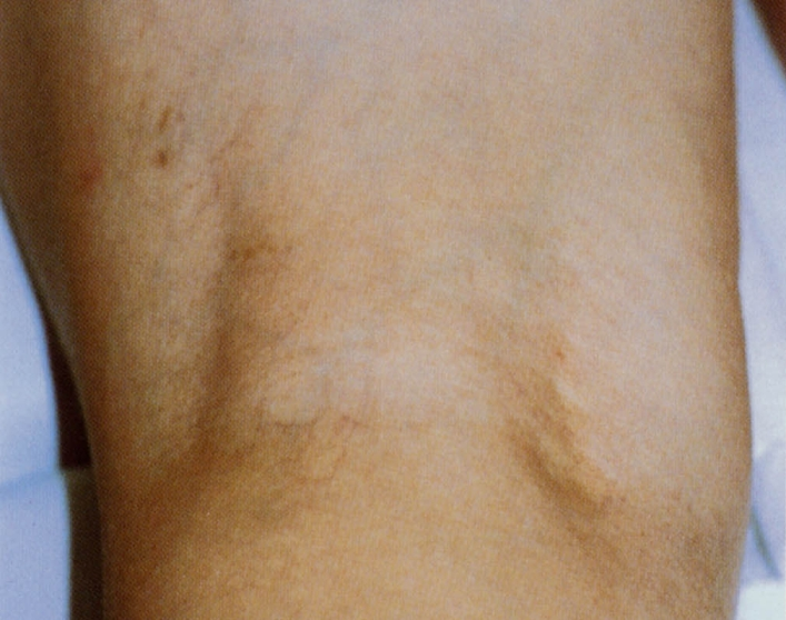 膝裏の青い血管