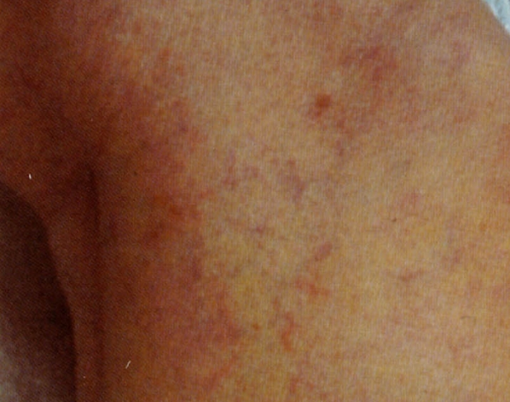 首の青い血管