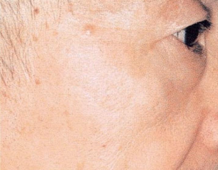 目の周りのシミ