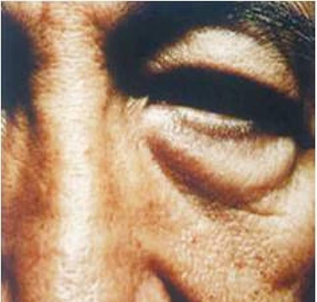 目の下のクマ+目の上・下のタルミ