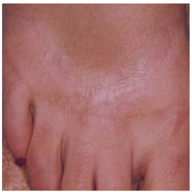 足のキズ跡