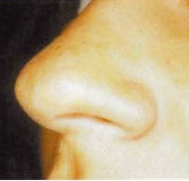 鼻のホクロ
