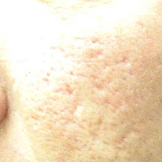 ホホから口元の毛穴の開き・ニキビ跡