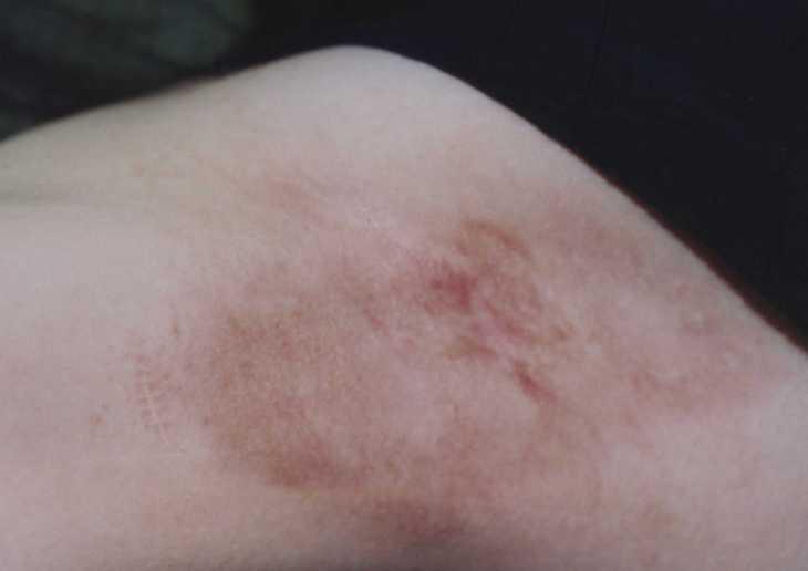 ワキガ手術の傷跡